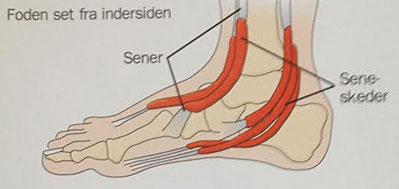 seneskedehindebetændelse i foden